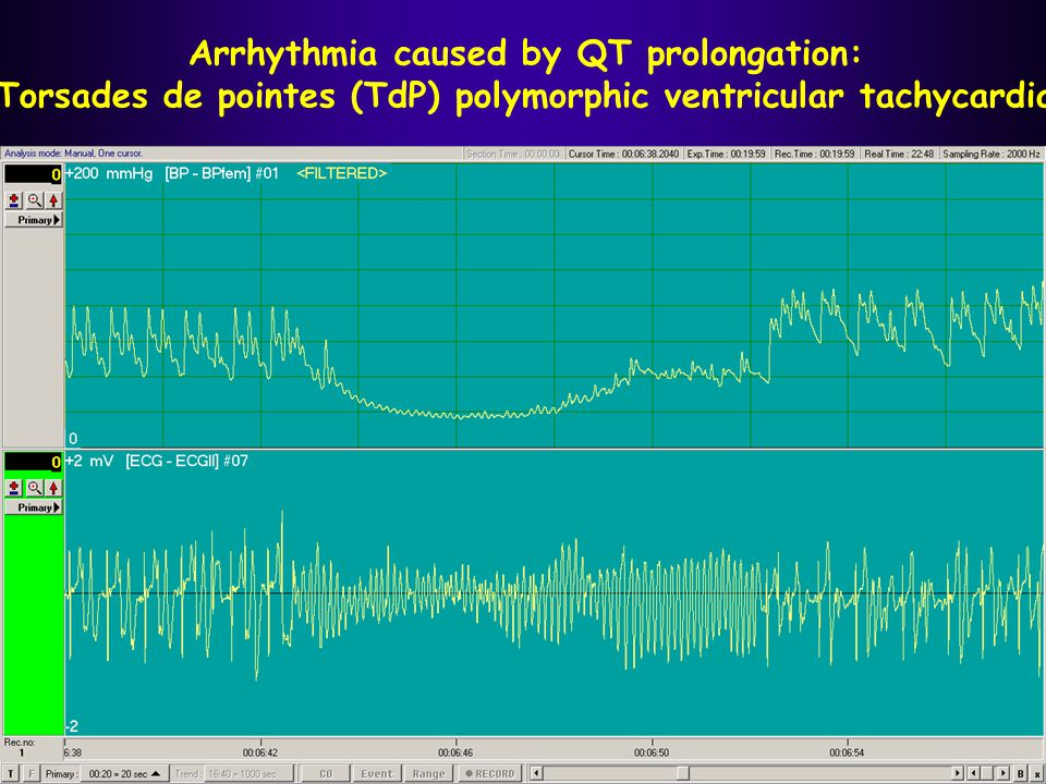 Arrhythmia caused by QT prolongation: Torsades de pointes (TdP) polymorphic ventricular tachycardia