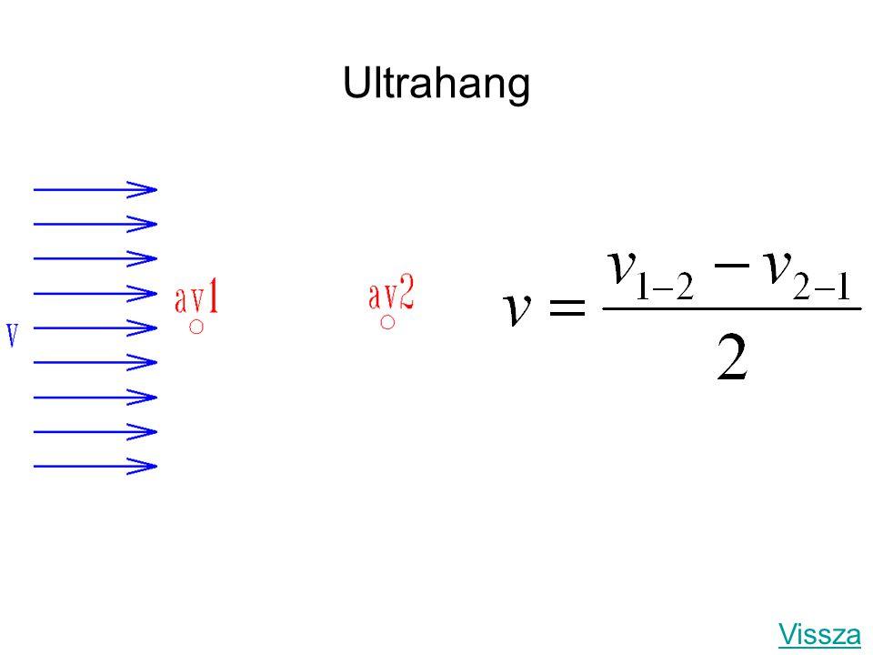 Ultrahang