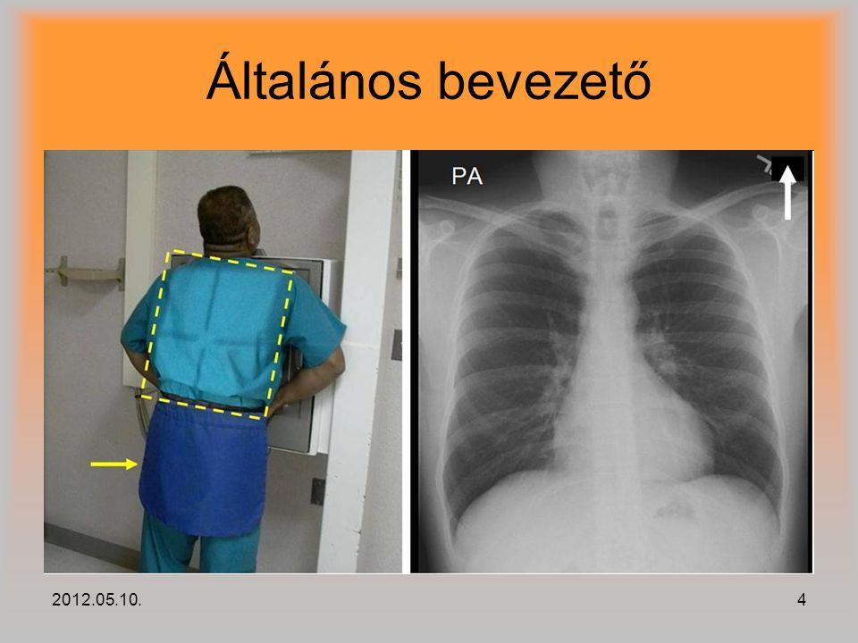 2012.05.10.15 Folt bejelölések összesítése Szűrés az összesített jelölt képen az alábbi jellemzők alapján: –területére –kerületére –effektív sugarára –elhelyezkedésére (tüdő körvonal)