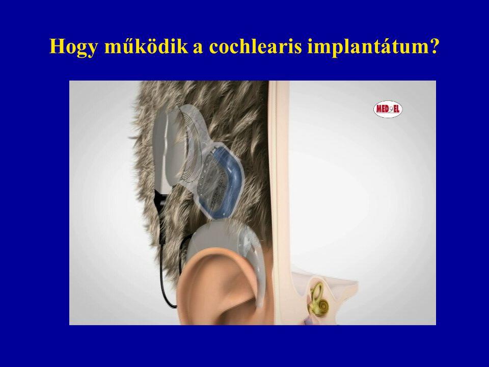 Hogy működik a cochlearis implantátum?
