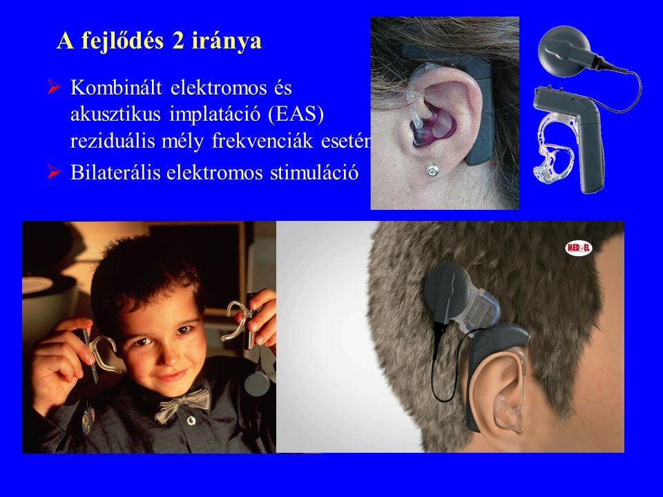 A fejlődés 2 iránya  Kombinált elektromos és akusztikus implatáció (EAS) reziduális mély frekvenciák esetén  Bilaterális elektromos stimuláció