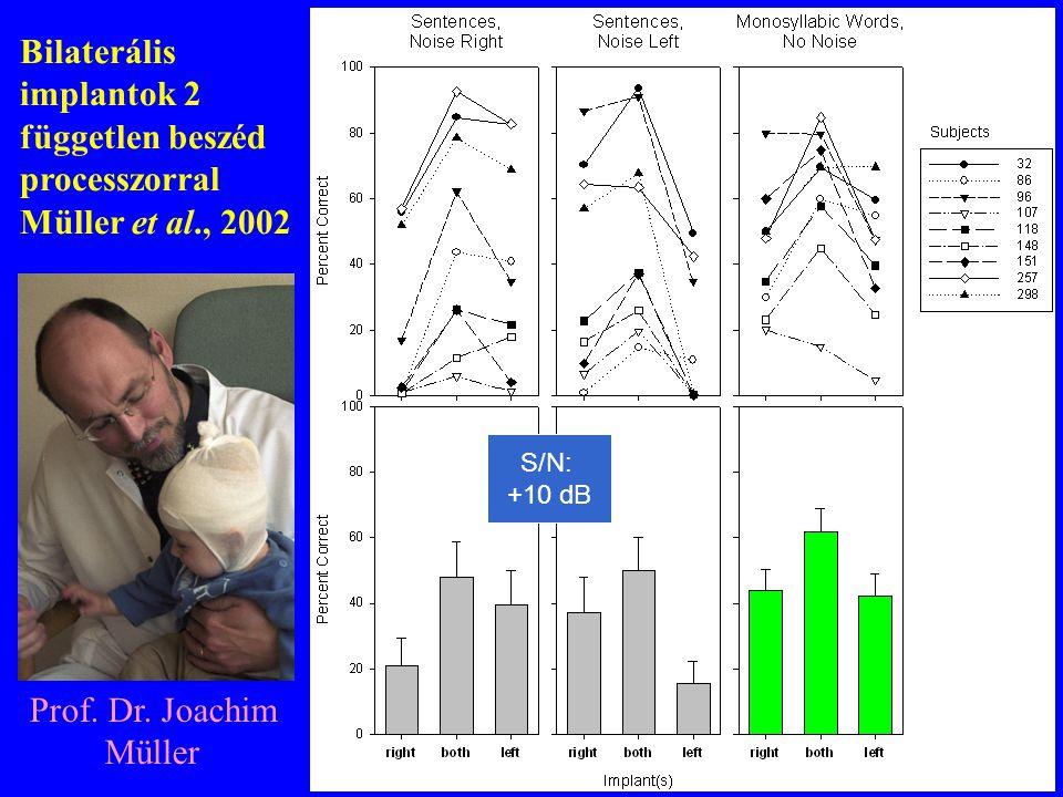 Bilaterális implantok 2 független beszéd processzorral Müller et al., 2002 Prof. Dr. Joachim Müller S/N: +10 dB