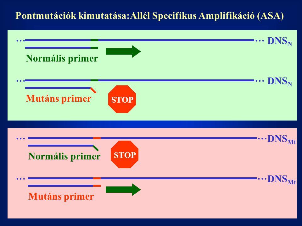 Pontmutációk kimutatása:Allél Specifikus Amplifikáció (ASA) … … … … … … …… DNS N DNS Mt Normális primer Mutáns primer STOP Normális primer Mutáns prim