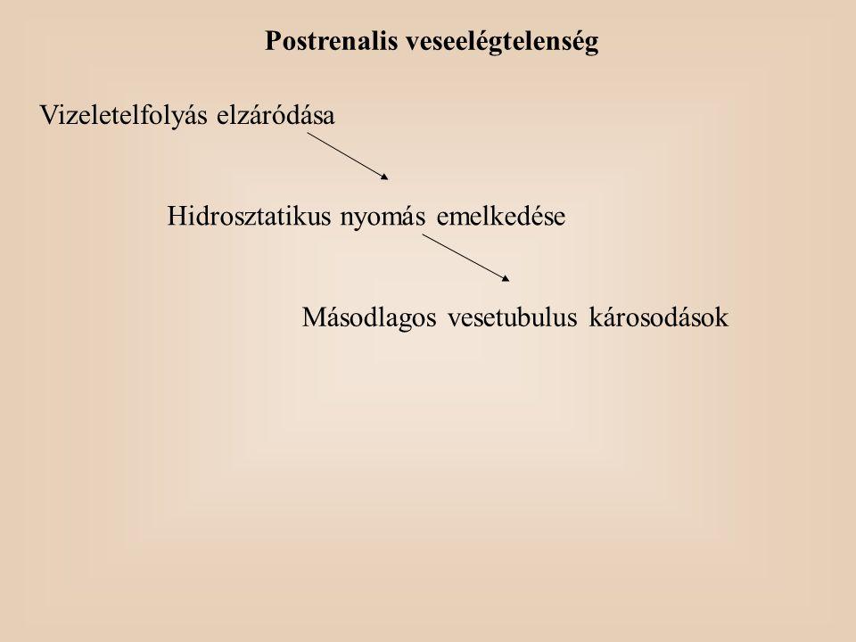 Postrenalis veseelégtelenség Vizeletelfolyás elzáródása Hidrosztatikus nyomás emelkedése Másodlagos vesetubulus károsodások