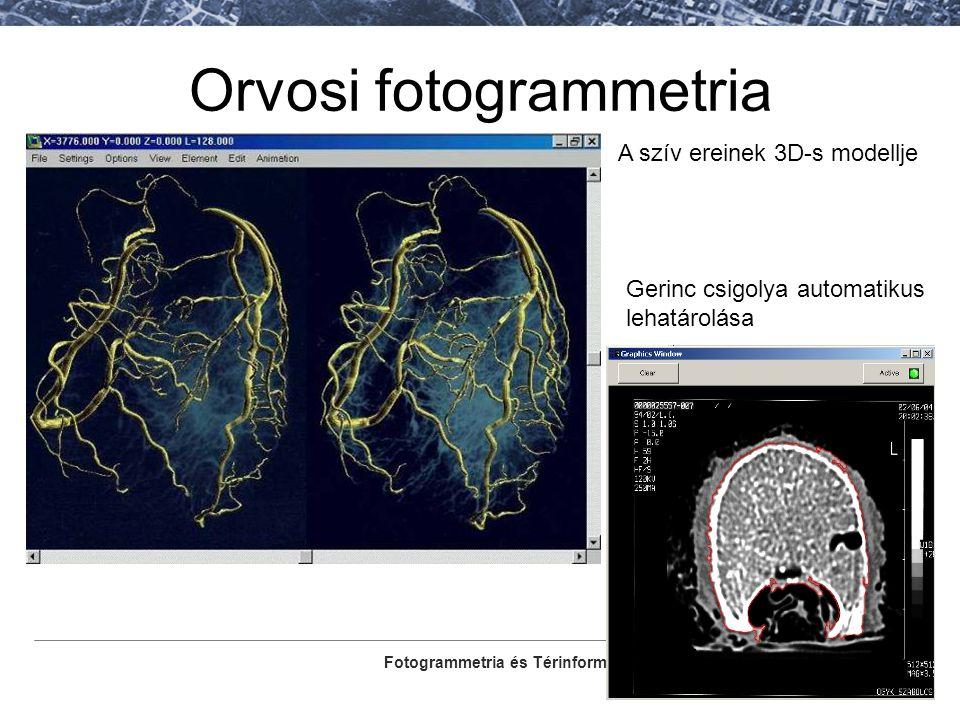 Fotogrammetria és Térinformatika Tanszék Orvosi fotogrammetria A szív ereinek 3D-s modellje Gerinc csigolya automatikus lehatárolása