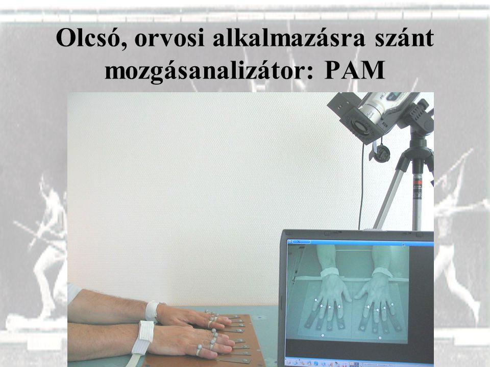 Olcsó, orvosi alkalmazásra szánt mozgásanalizátor: PAM