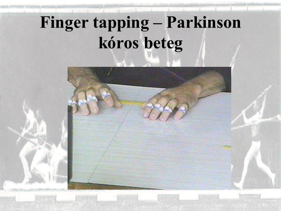 Finger tapping – Parkinson kóros beteg