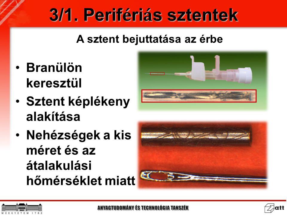 Branülön keresztül Sztent képlékeny alakítása Nehézségek a kis méret és az átalakulási hőmérséklet miatt 3/1. Perif é ri á s sztentek A sztent bejutta