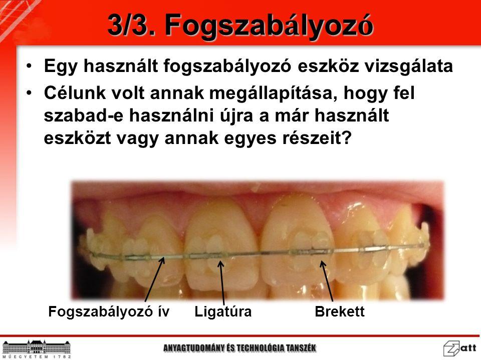 3/3. Fogszab á lyoz ó Egy használt fogszabályozó eszköz vizsgálata Célunk volt annak megállapítása, hogy fel szabad-e használni újra a már használt es