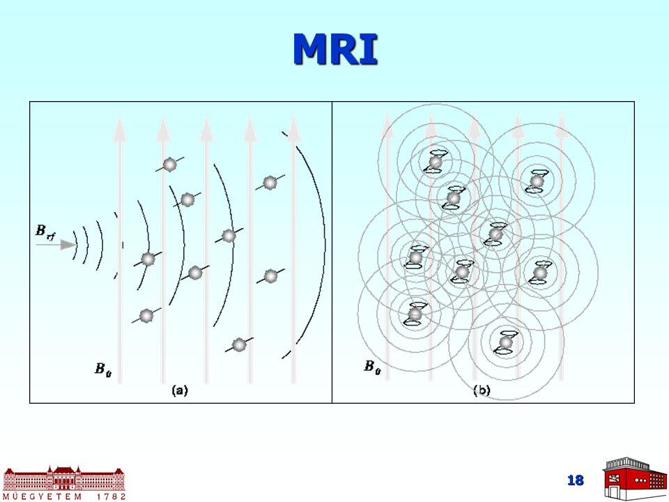 18 MRI
