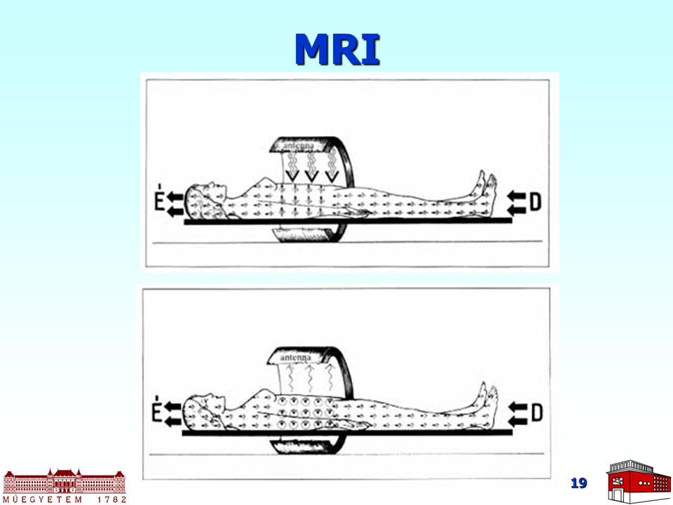 19 MRI