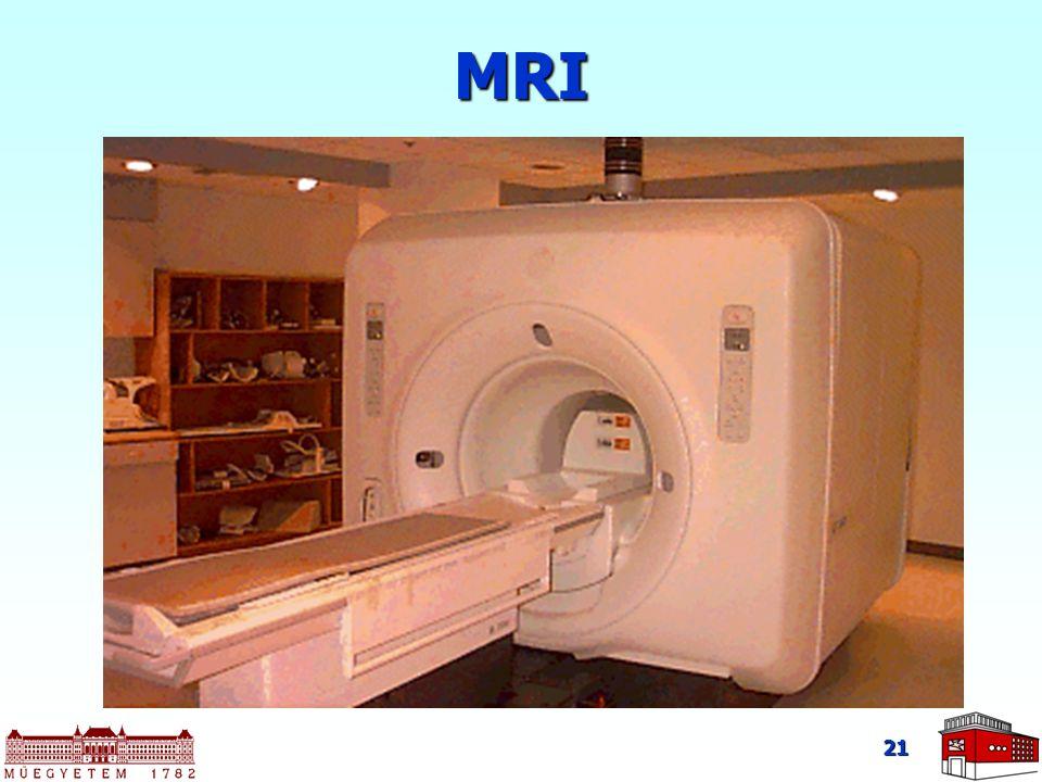 21 MRI