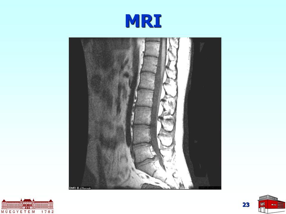 23 MRI