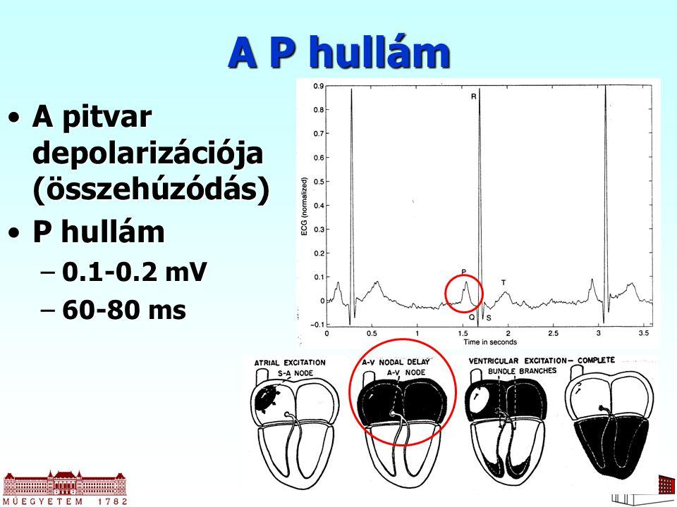 20 A pitvar depolarizációja (összehúzódás)A pitvar depolarizációja (összehúzódás) P hullámP hullám –0.1-0.2 mV –60-80 ms A P hullám