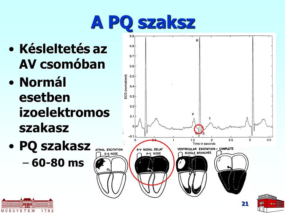 21 Késleltetés az AV csomóbanKésleltetés az AV csomóban Normál esetben izoelektromos szakaszNormál esetben izoelektromos szakasz PQ szakaszPQ szakasz –60-80 ms A PQ szaksz