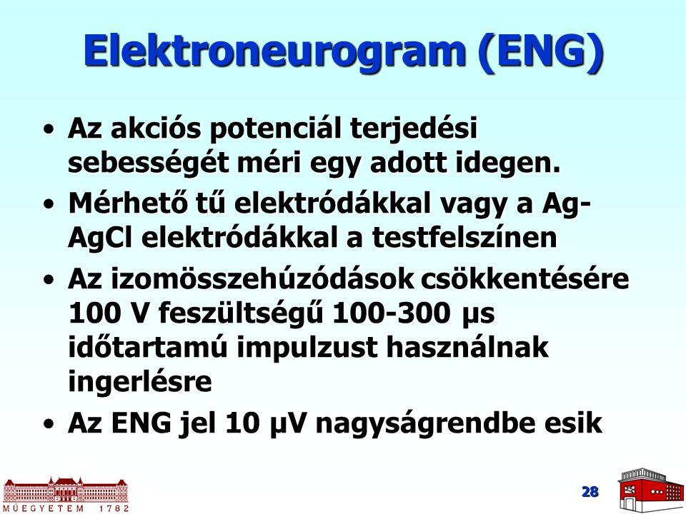 28 Elektroneurogram (ENG) Az akciós potenciál terjedési sebességét méri egy adott idegen.Az akciós potenciál terjedési sebességét méri egy adott idege