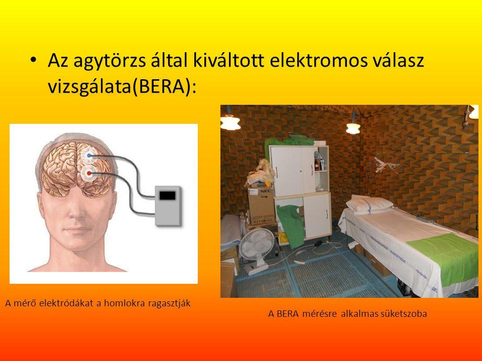 Az agytörzs által kiváltott elektromos válasz vizsgálata(BERA): A mérő elektródákat a homlokra ragasztják A BERA mérésre alkalmas süketszoba
