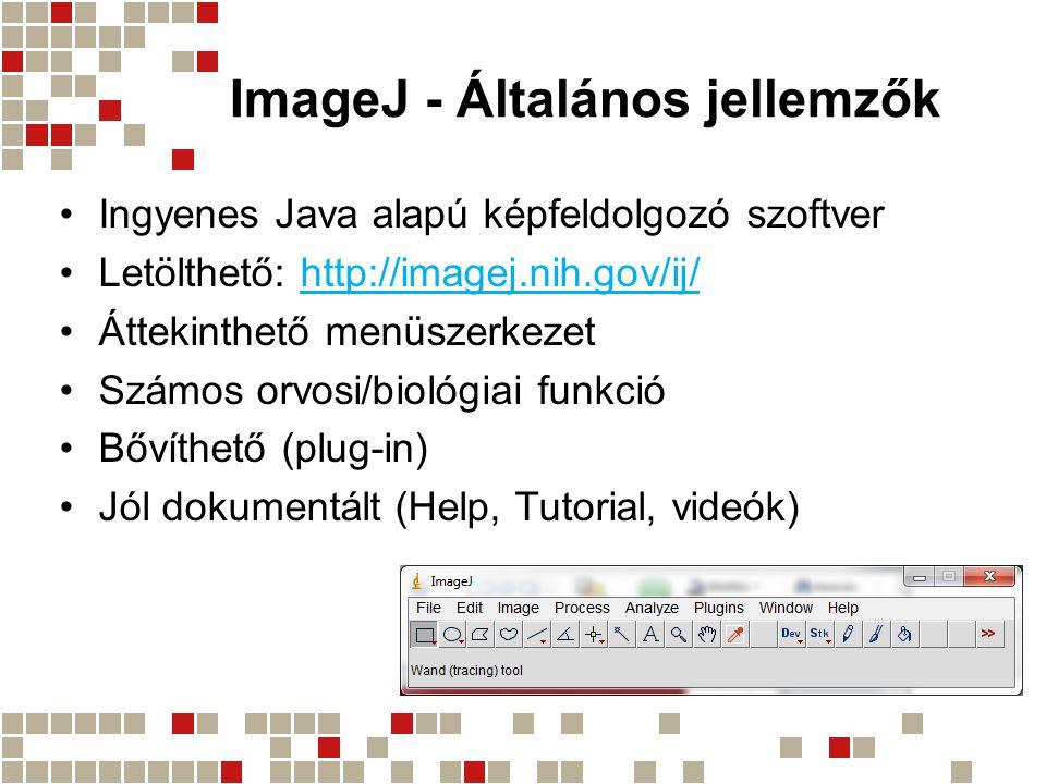 ImageJ - Általános jellemzők Ingyenes Java alapú képfeldolgozó szoftver Letölthető: http://imagej.nih.gov/ij/http://imagej.nih.gov/ij/ Áttekinthető me