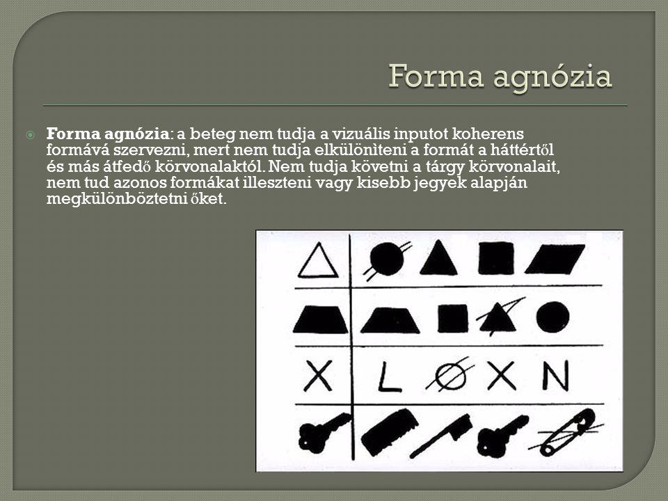  Forma agnózia: a beteg nem tudja a vizuális inputot koherens formává szervezni, mert nem tudja elkülönìteni a formát a háttért ő l és más átfed ő kö