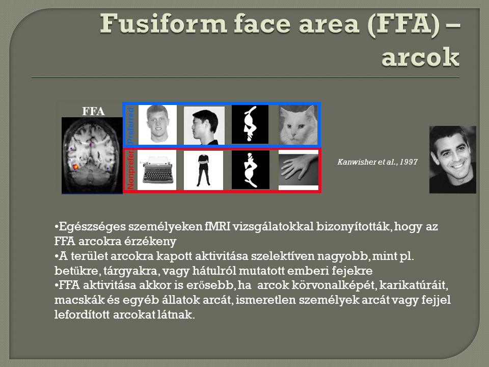FFA Preferred Nonprefer. Kanwisher et al., 1997 Egészséges személyeken fMRI vizsgálatokkal bizonyították, hogy az FFA arcokra érzékeny A terület arcok