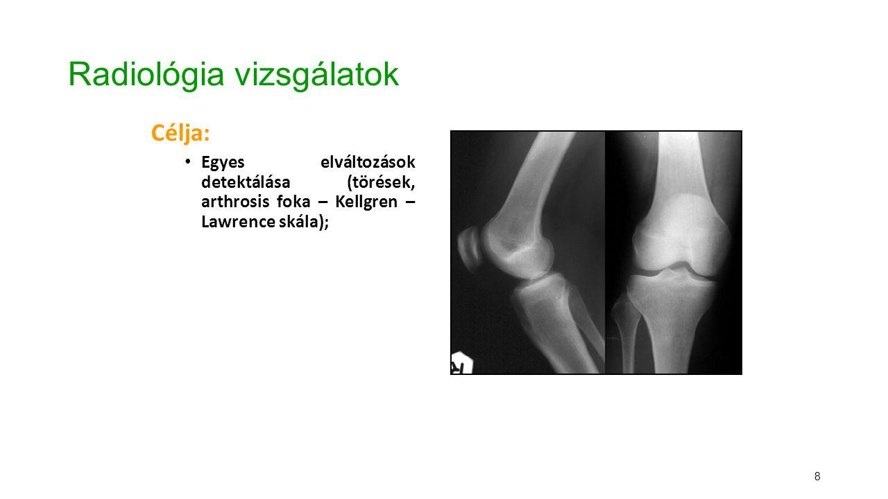 9 Radiológia vizsgálatok Célja: Egyes elváltozások detektálása (törések, arthrosis foka – Kellgren-Lawrence skála); Beépített protézisek helyzetének meghatározása;