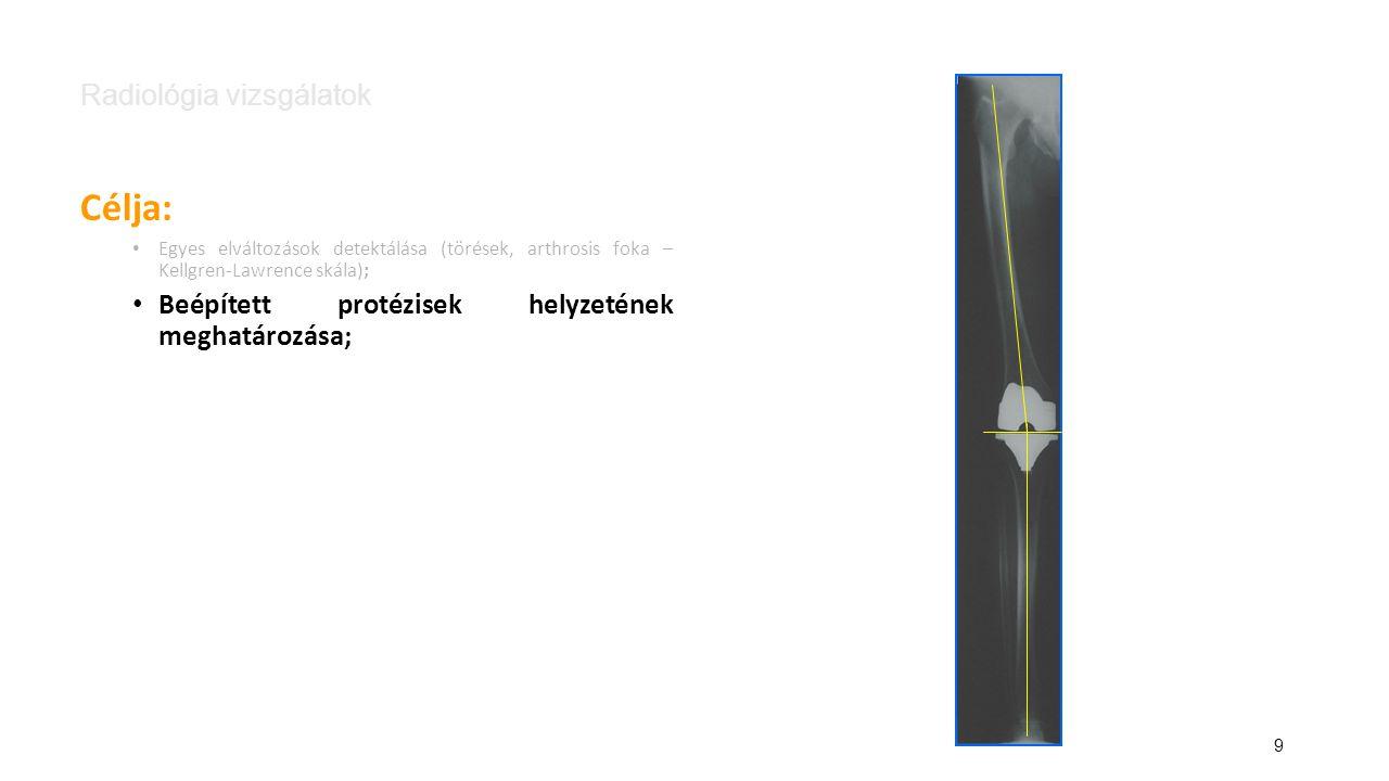 10 Radiológia vizsgálatok Célja: Egyes elváltozások detektálása (törések, arthrosis foka – Kellgren-Lawrence skála); Beépített protézisek helyzetének meghatározása; Kijelölt csontok (szegmentumok), pontok térbeli helyzetének a meghatározása a mozgás jellegzetes pontjain (végpontok); szegmentum anatómiai pont csont
