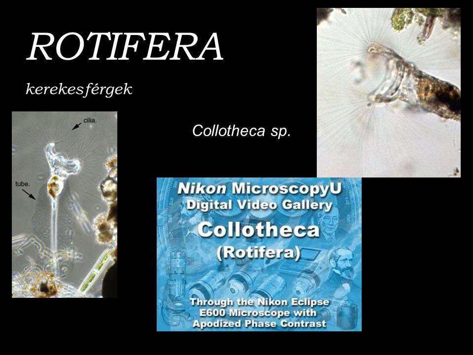 Collotheca sp. ROTIFERA kerekesférgek