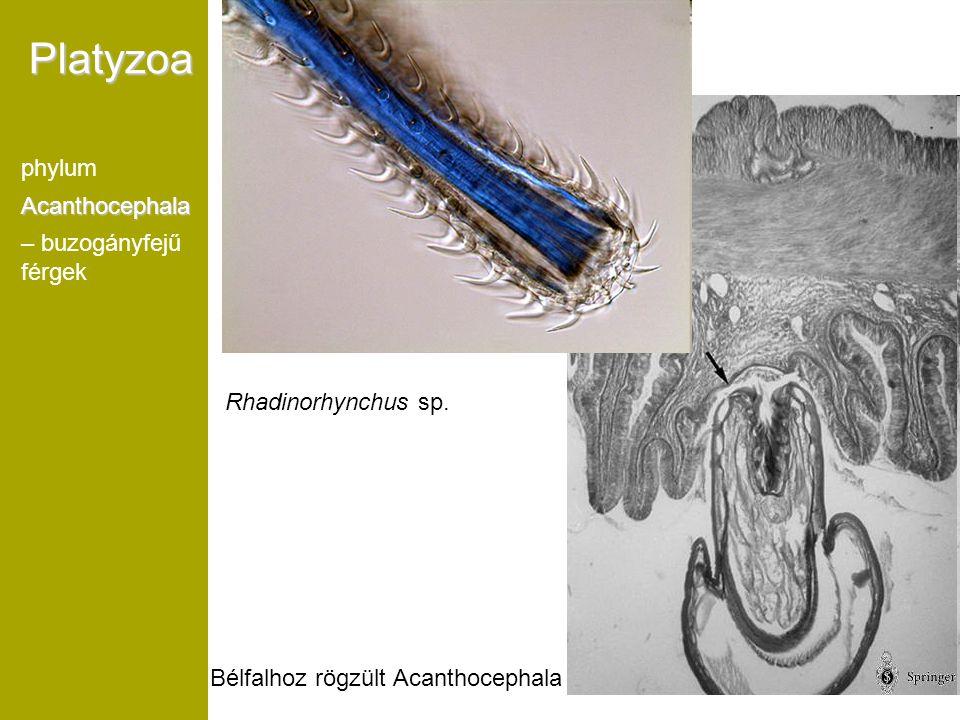 Bélfalhoz rögzült Acanthocephala Platyzoa phylumAcanthocephala – buzogányfejű férgek Rhadinorhynchus sp.