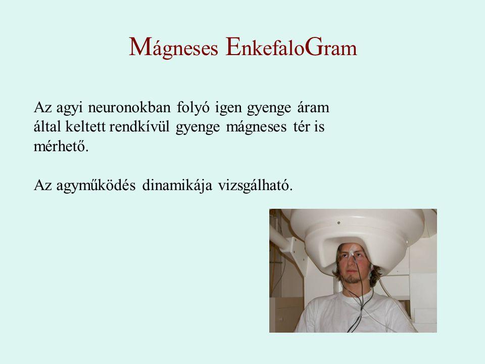 M ágneses E nkefalo G ram Az agyi neuronokban folyó igen gyenge áram által keltett rendkívül gyenge mágneses tér is mérhető. Az agyműködés dinamikája