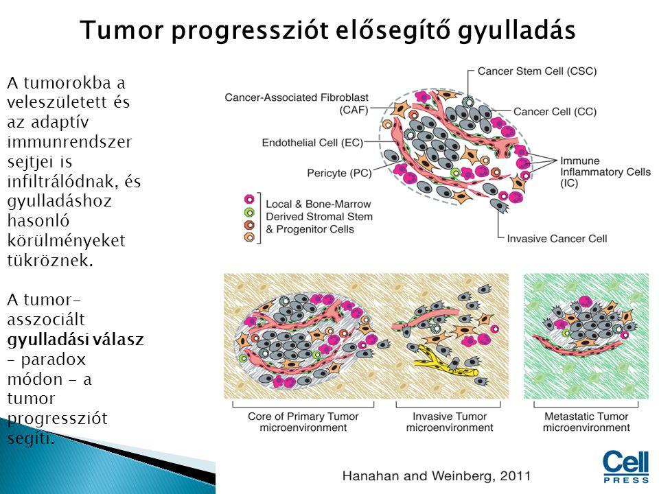 Tumor progressziót elősegítő gyulladás A tumorokba a veleszületett és az adaptív immunrendszer sejtjei is infiltrálódnak, és gyulladáshoz hasonló körü