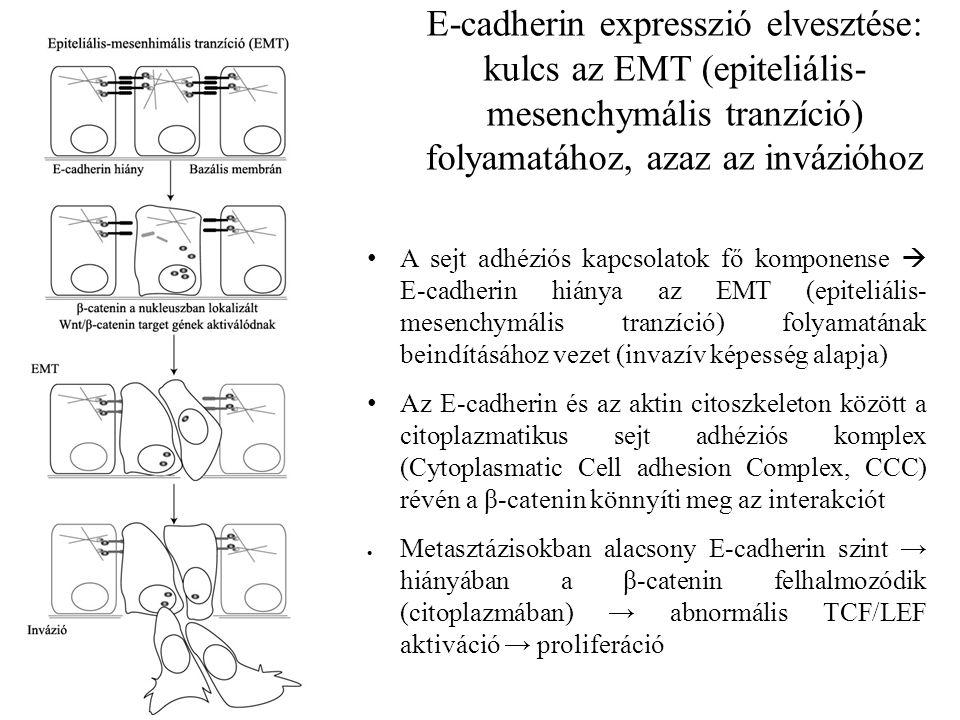 E-cadherin expresszió elvesztése: kulcs az EMT (epiteliális- mesenchymális tranzíció) folyamatához, azaz az invázióhoz A sejt adhéziós kapcsolatok fő