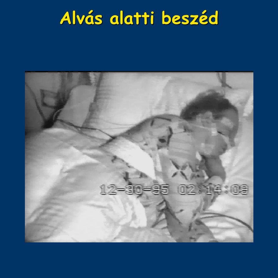 Alvás alatti beszéd