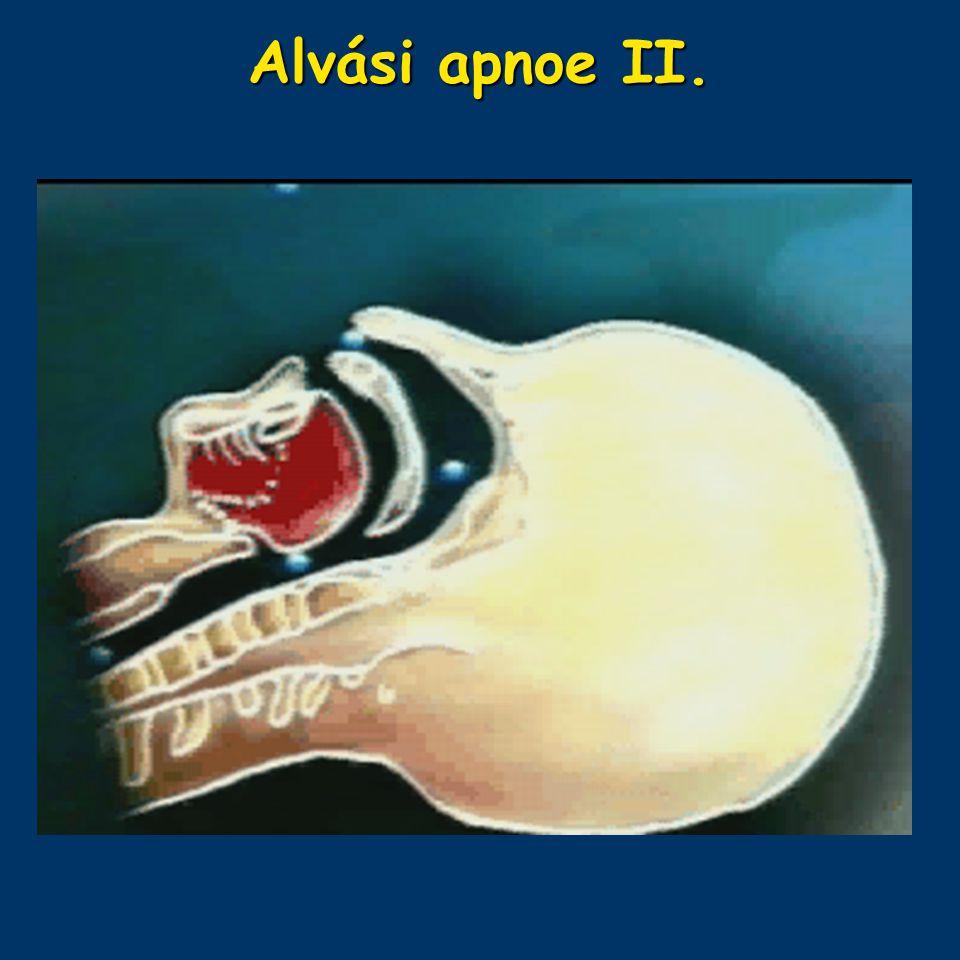 Alvási apnoe II.