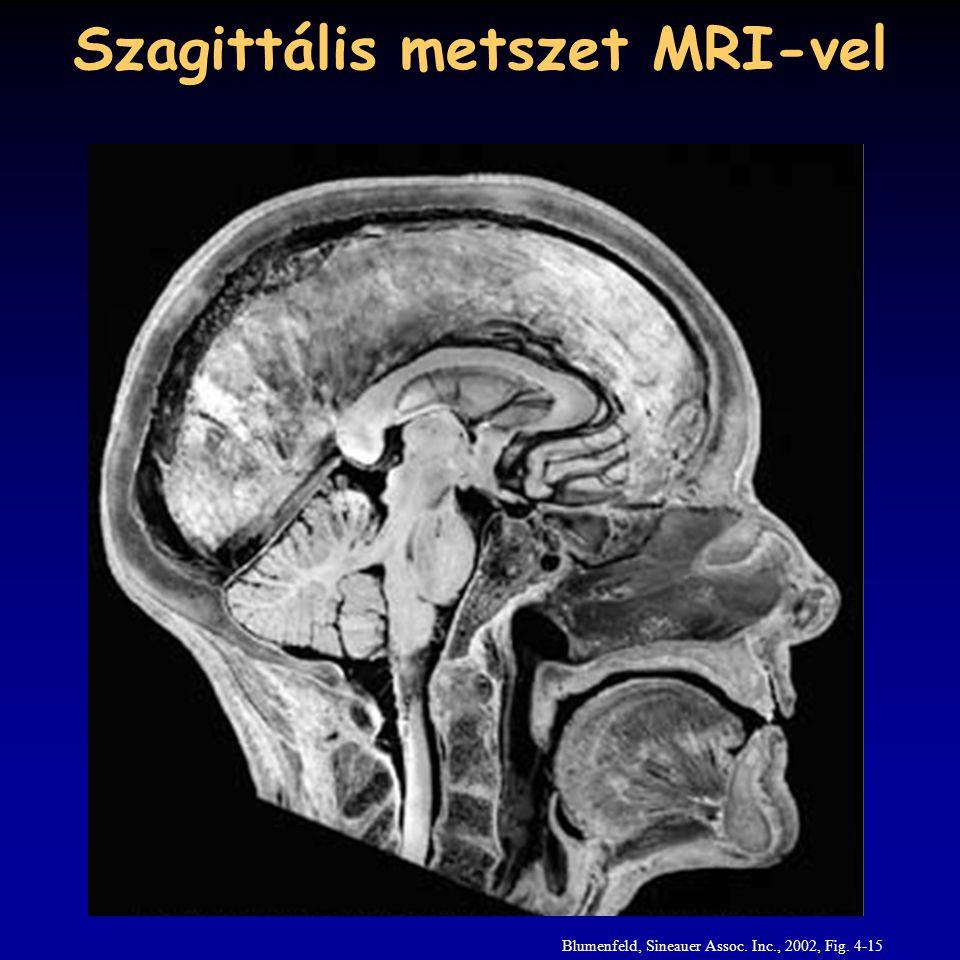 Szagittális metszet MRI-vel Blumenfeld, Sineauer Assoc. Inc., 2002, Fig. 4-15