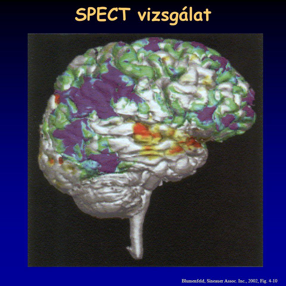 SPECT vizsgálat Blumenfeld, Sineauer Assoc. Inc., 2002, Fig. 4-10