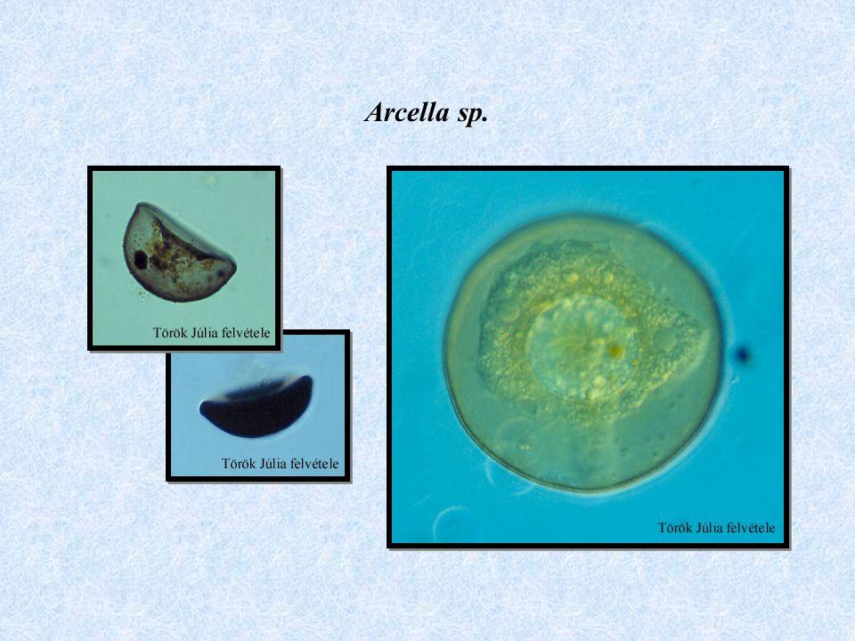Arcella sp.