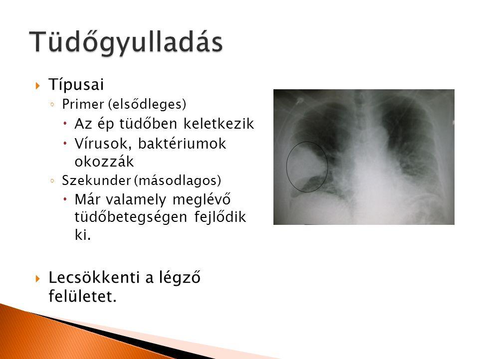  Típusai ◦ Primer (elsődleges)  Az ép tüdőben keletkezik  Vírusok, baktériumok okozzák ◦ Szekunder (másodlagos)  Már valamely meglévő tüdőbetegség