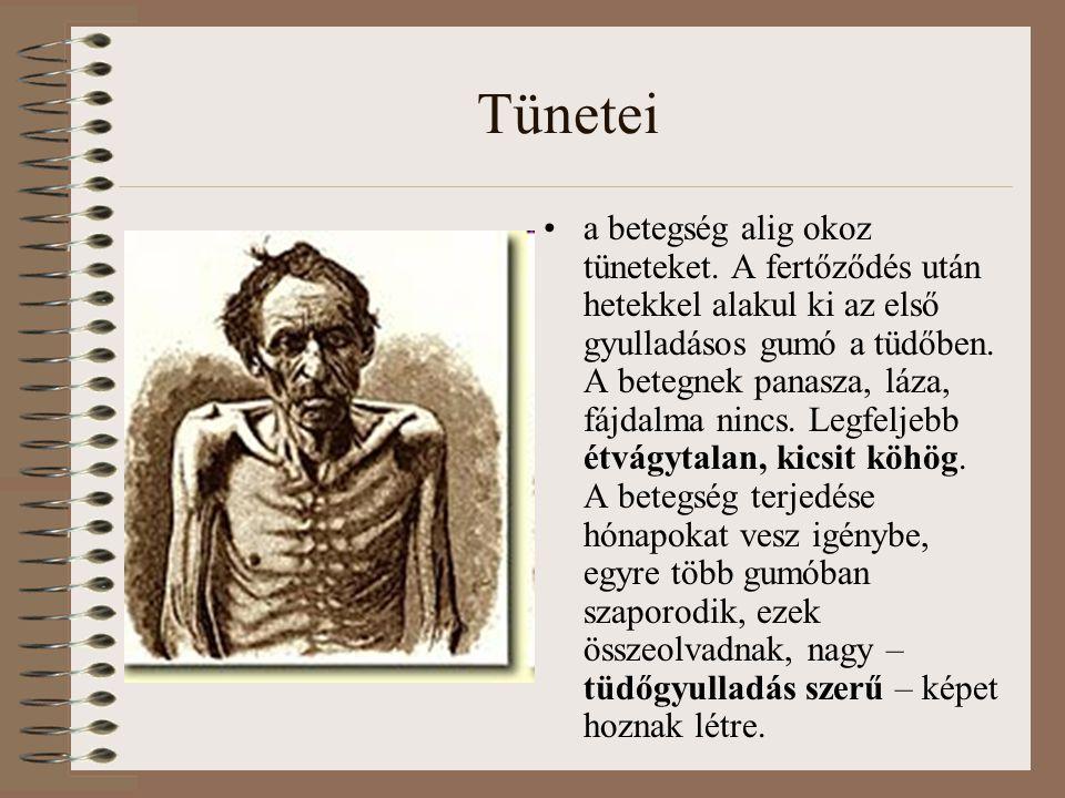 Tünetei a betegség alig okoz tüneteket. A fertőződés után hetekkel alakul ki az első gyulladásos gumó a tüdőben. A betegnek panasza, láza, fájdalma ni