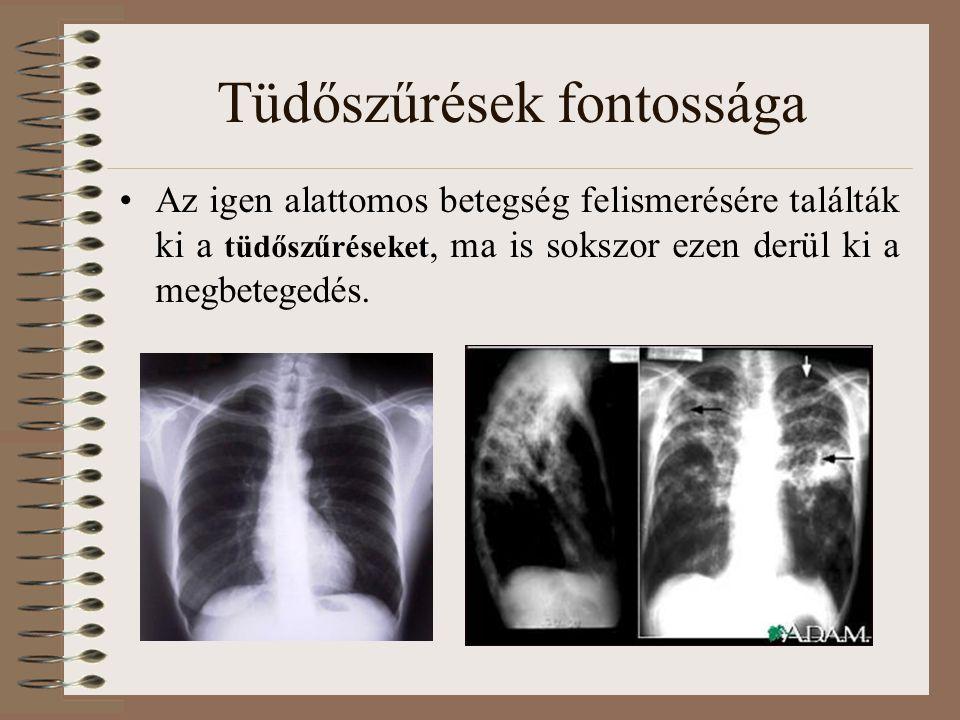 Tüdőszűrések fontossága Az igen alattomos betegség felismerésére találták ki a tüdőszűréseket, ma is sokszor ezen derül ki a megbetegedés.