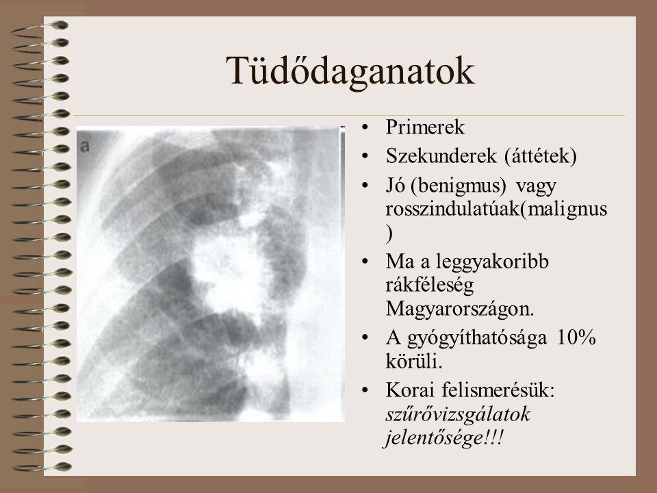 Tüdődaganatok Primerek Szekunderek (áttétek) Jó (benigmus) vagy rosszindulatúak(malignus ) Ma a leggyakoribb rákféleség Magyarországon. A gyógyíthatós