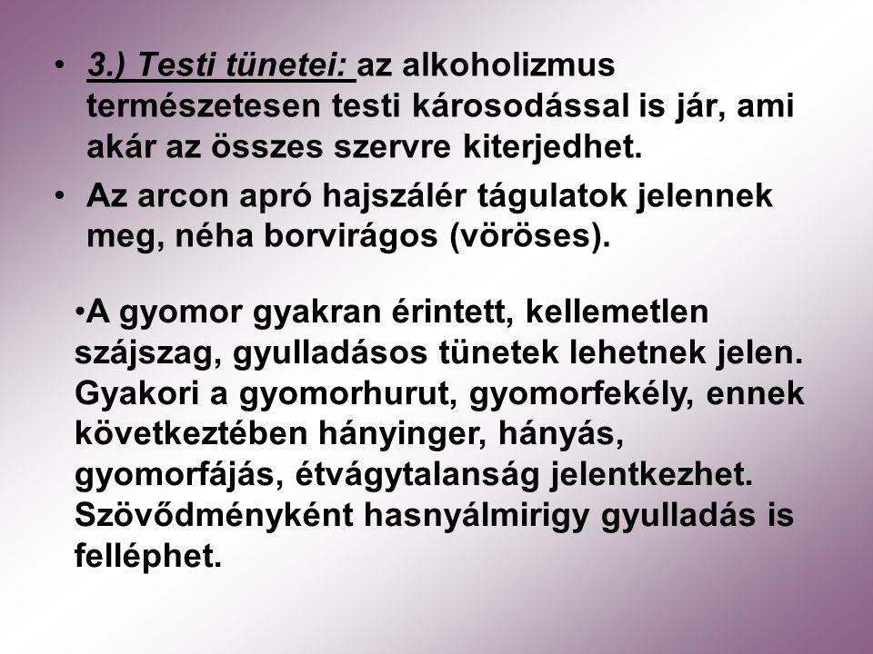 3.) Testi tünetei: az alkoholizmus természetesen testi károsodással is jár, ami akár az összes szervre kiterjedhet. Az arcon apró hajszálér tágulatok