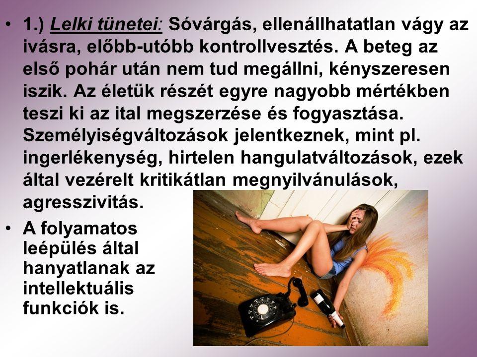 1.) Lelki tünetei: Sóvárgás, ellenállhatatlan vágy az ivásra, előbb-utóbb kontrollvesztés. A beteg az első pohár után nem tud megállni, kényszeresen i