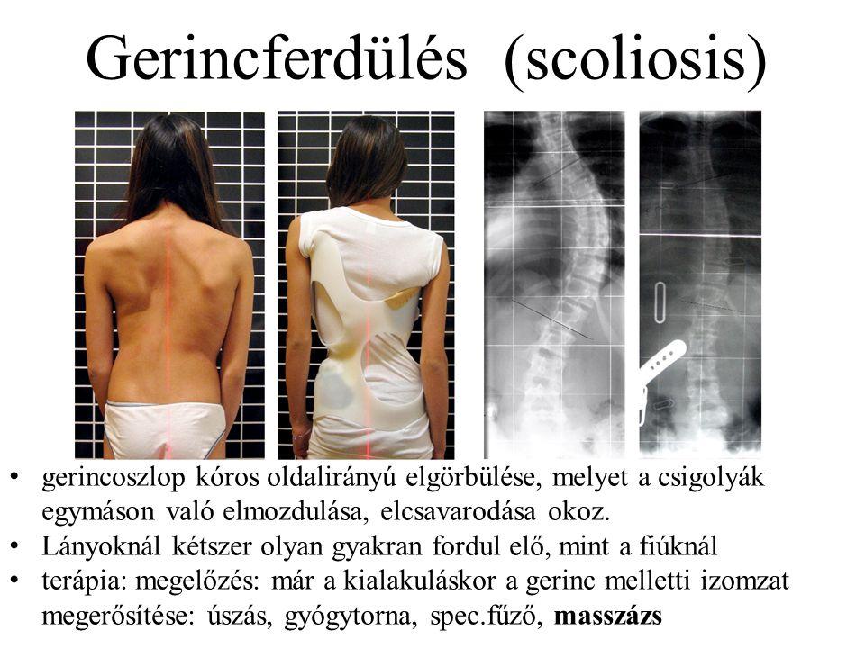 Gerincferdülés (scoliosis) gerincoszlop kóros oldalirányú elgörbülése, melyet a csigolyák egymáson való elmozdulása, elcsavarodása okoz. Lányoknál két