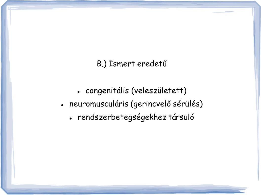 B.) Ismert eredetű congenitális (veleszületett) neuromusculáris (gerincvelő sérülés) rendszerbetegségekhez társuló