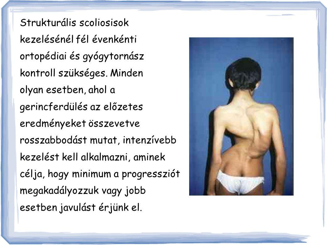 Strukturális scoliosisok kezelésénél fél évenkénti ortopédiai és gyógytornász kontroll szükséges.