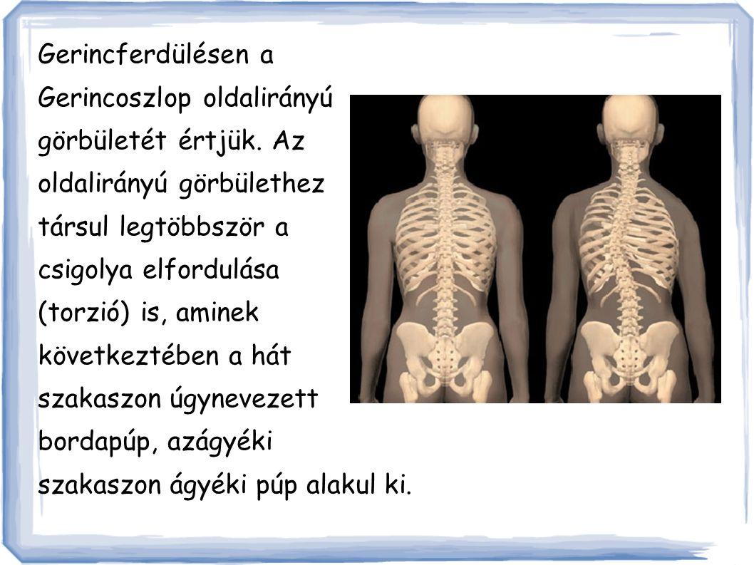 Érintettsége: A gerincferdülések túlnyomó része 10-14 éves korban alakul ki.
