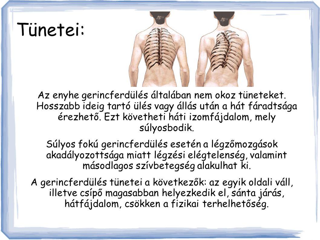Tünetei: Az enyhe gerincferdülés általában nem okoz tüneteket.