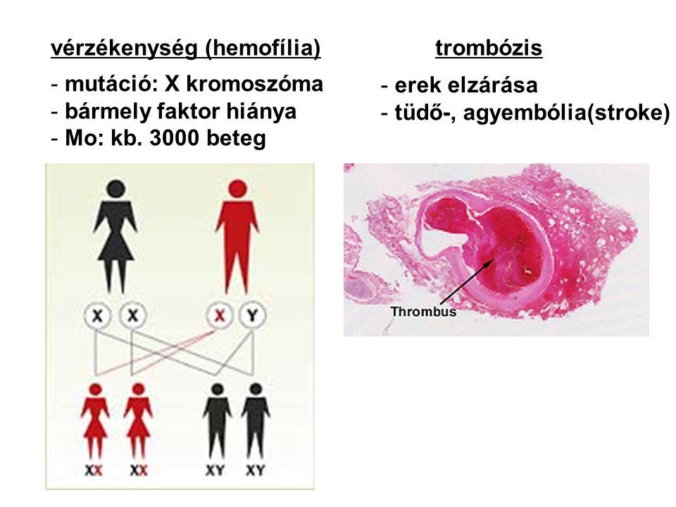 vérzékenység (hemofília)trombózis - mutáció: X kromoszóma - bármely faktor hiánya - Mo: kb. 3000 beteg - erek elzárása - tüdő-, agyembólia(stroke)