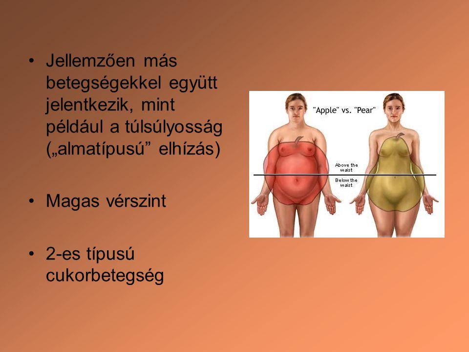 """Jellemzően más betegségekkel együtt jelentkezik, mint például a túlsúlyosság (""""almatípusú"""" elhízás) Magas vérszint 2-es típusú cukorbetegség"""