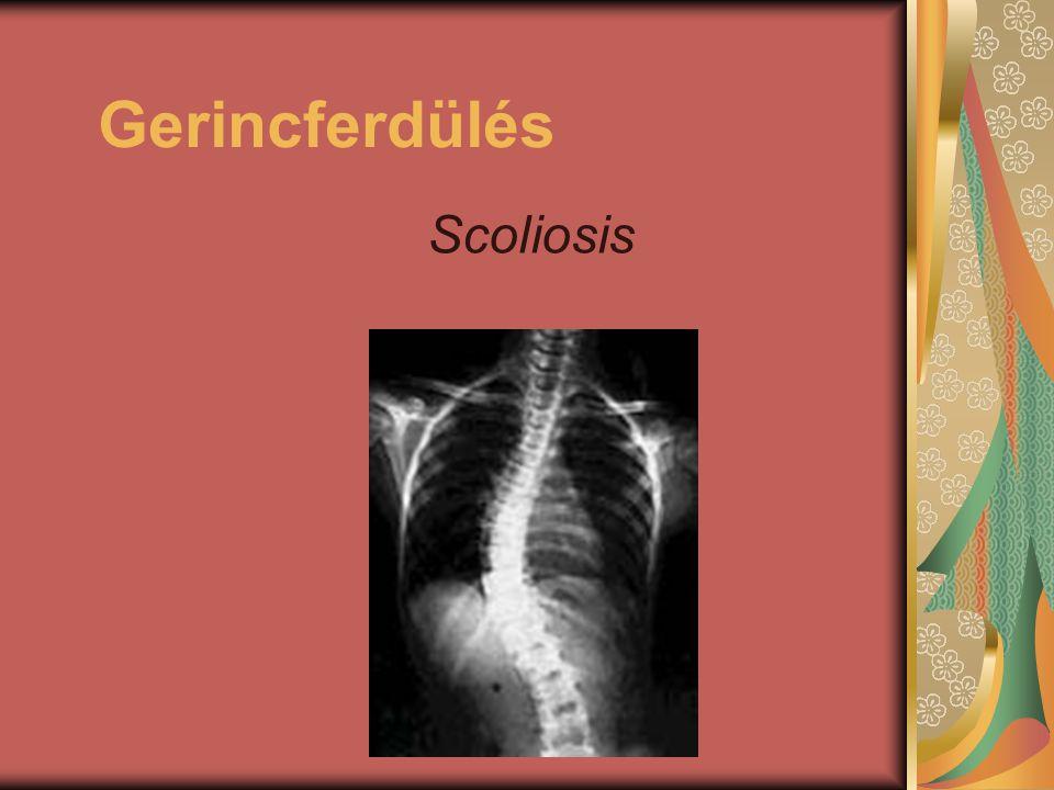 Gerincferdülés Scoliosis